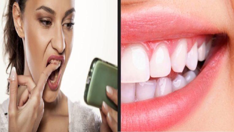 …म्हणून दात लवकर खराब होतात