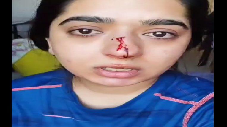 'झोमॅटो'च्या डिलिव्हरी बॉयचा महिलेवर हल्ला, या कारणामुळे फोडले महिलेचे नाक
