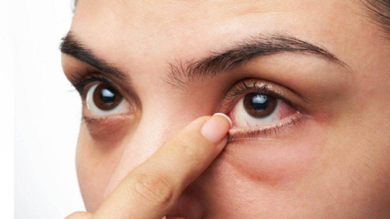 Eye diabetic चा धोका वाढतोय, आता दोन मिनीटात कळेल तुम्हाला डायबेटीज आहे की नाही!