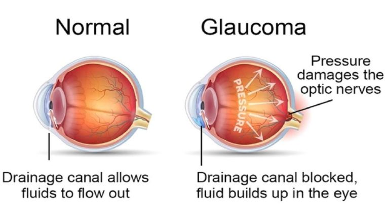 देशात ग्लॉकोमा रुग्णांचा आकडा वाढतो आहे; जाणून घ्या सविस्तर