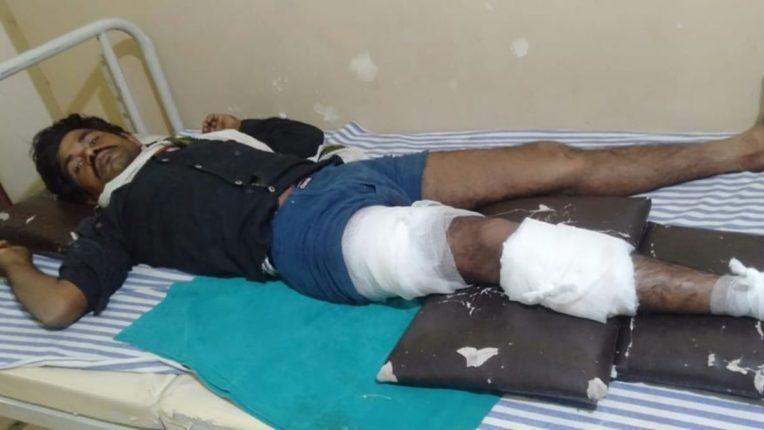 रानडुक्कराचा दोन शेतमजुरांवर हल्ला; भिष्णूर शिवारातील घटना, एक गंभीर जखमी