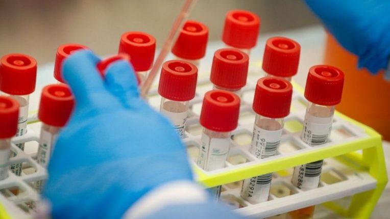 कल्याण डोंबिवलीमध्ये १३५ नवे रुग्ण, दोघांचा कोरोनाने घेतला बळी
