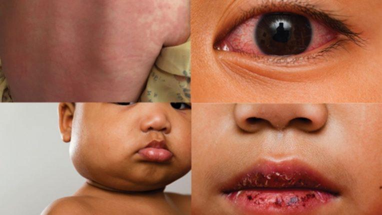 कोरोनामुक्त बालकांना 'एमएसआयसी' धोका वाढण्याची शक्यता