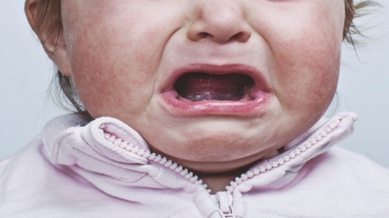 A 13-month-old girl in Jharkhand has recently been diagnosed with fetal malformations