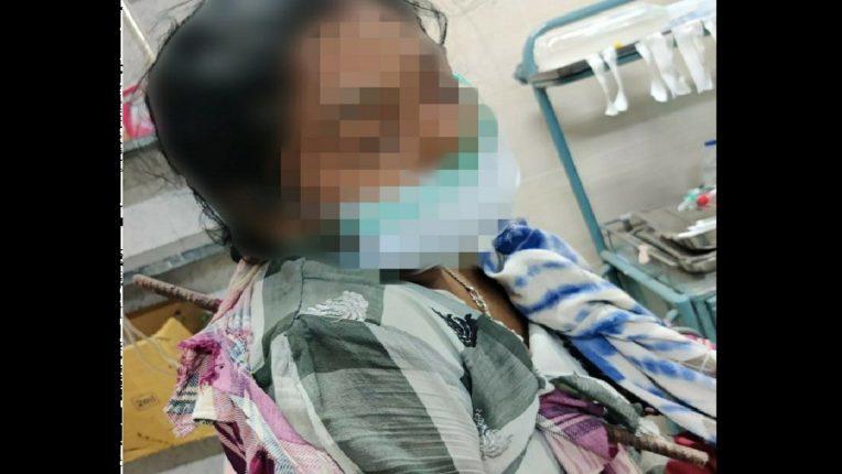 दीड फूट लांबीची सळई छातीतून आरपार, महानगरपालिकेच्या रुग्णालयात महिलेवर झाली यशस्वी शस्त्रक्रिया