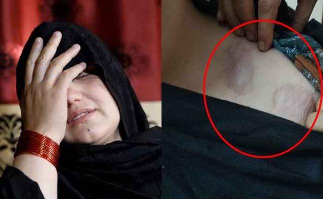 """""""ती लोकं खूप क्रूर आहेत.. महिलांना मारून त्यांच्या  शरीराचे तुकडे कुत्र्यांना खाऊ घालतात"""" ; पीडित महिलेने सांगितली तालिबानची क्रुरता"""