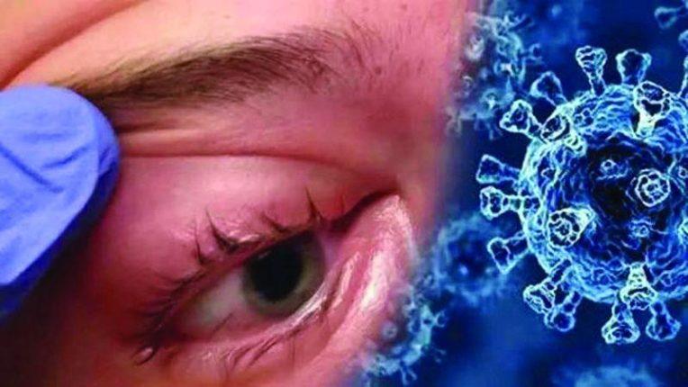 म्युकरमायकोसिस फैलावतोय, दिवसेंदिवस रुग्णसंख्येत वाढ
