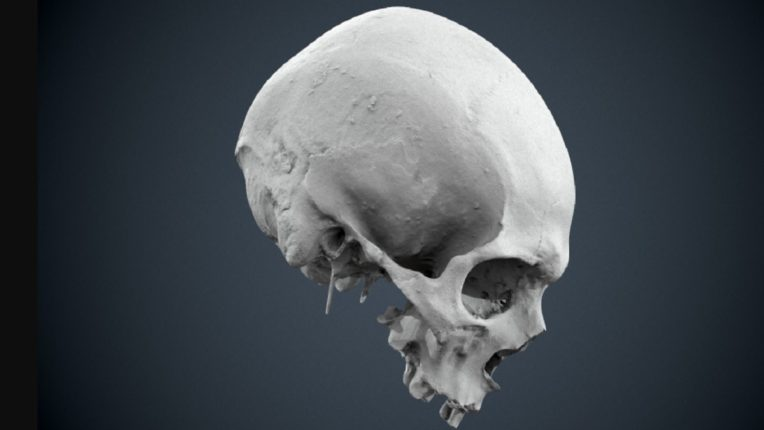 Human skull found in woman's bag while checking; Excitement at Madhya Pradesh airport