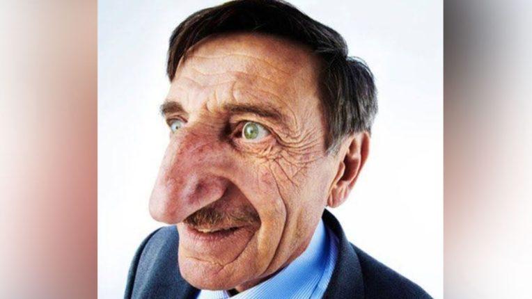 Viral News : ही आहे जगातील सर्वात मोठी नाक असलेली व्यक्ती, वयाच्या ७१ व्या वर्षीही दररोज वाढतोय आकार